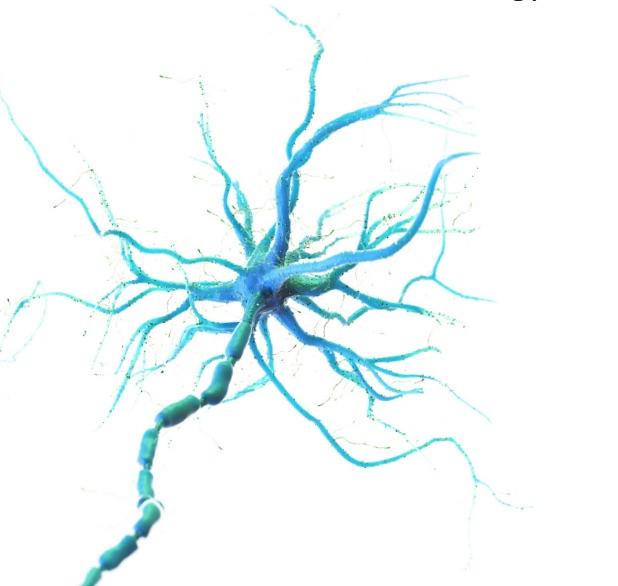 Alzheimer's Cyrex Test